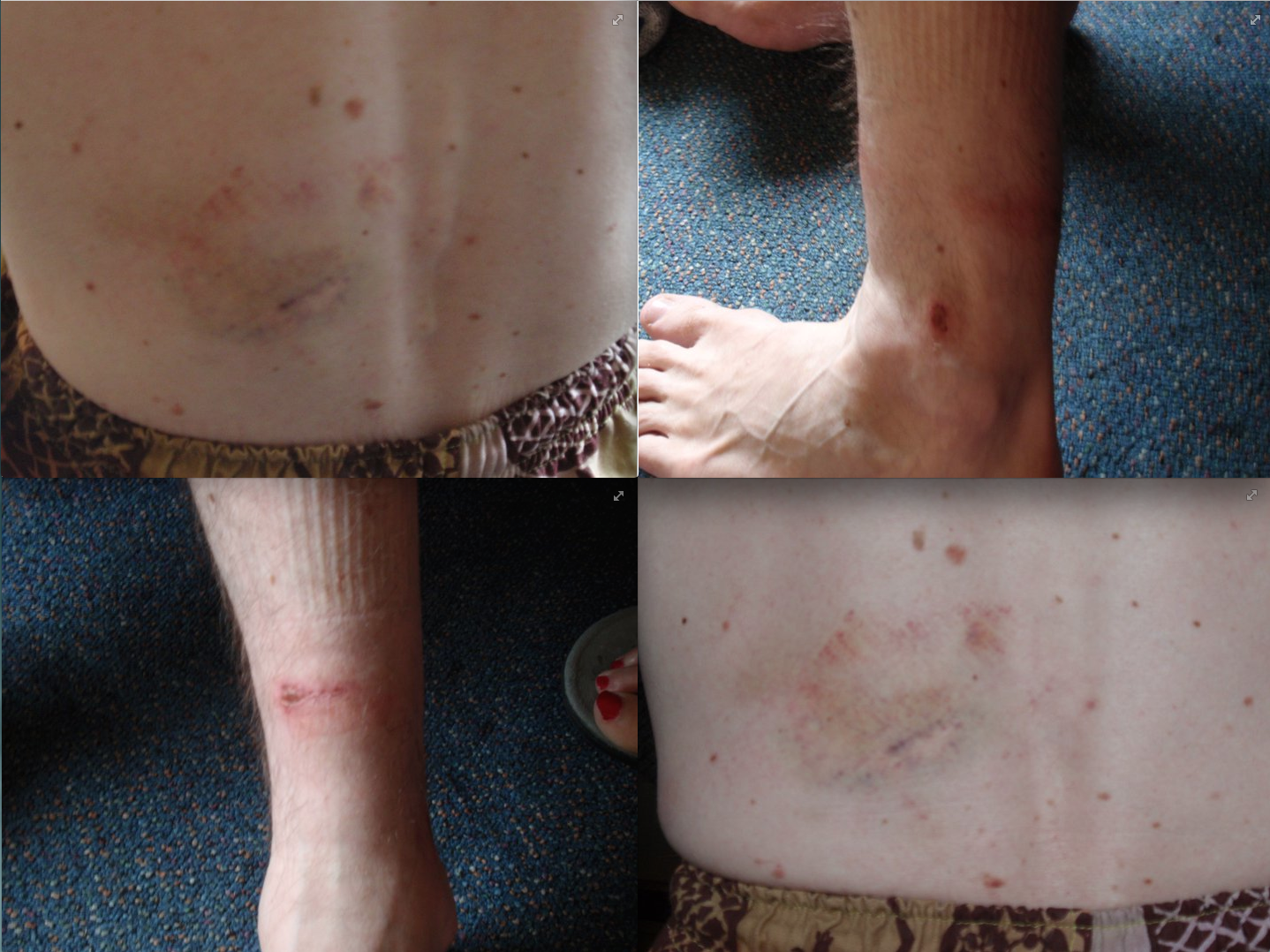 Injuries sustained during an alleged prolonged assault by police officers whilst the victim was in police custody.